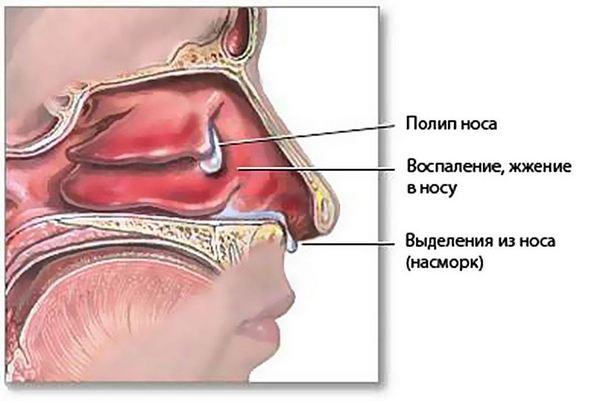 Жжение в носу при простуде