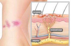 Лечение опоясывающего герпеса (лишая), его причины и симптомы