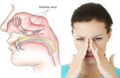 Чем лечить герпес в носу, его причины и симптомы