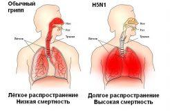 Признаки и симптомы птичьего гриппа у человека, лечение заболевания