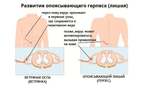 Опоясывающий герпес (лишай) - причины, симптомы и лечение