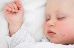 Как лечить герпес во рту у ребенка