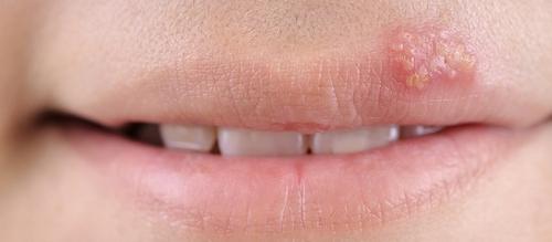 вирус герпеса на губах