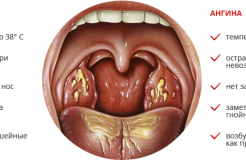 Чем отличается тонзиллит от ангины и в чем их схожесть