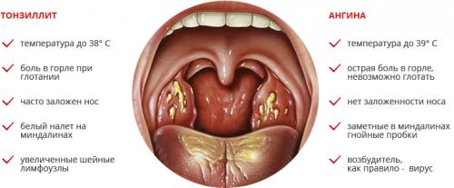 Чем отличается тонзиллит от ангины