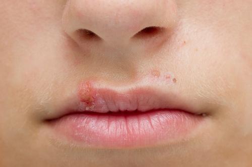 герпес у детей на губах