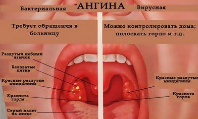 Ангина пути передачи инфекции