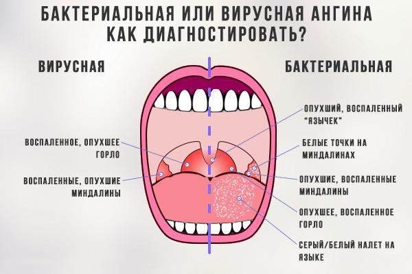 симптомы вирусной ангины