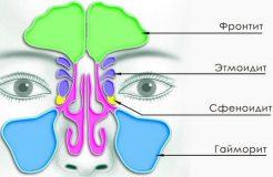 Как лечить синусит в домашних условиях