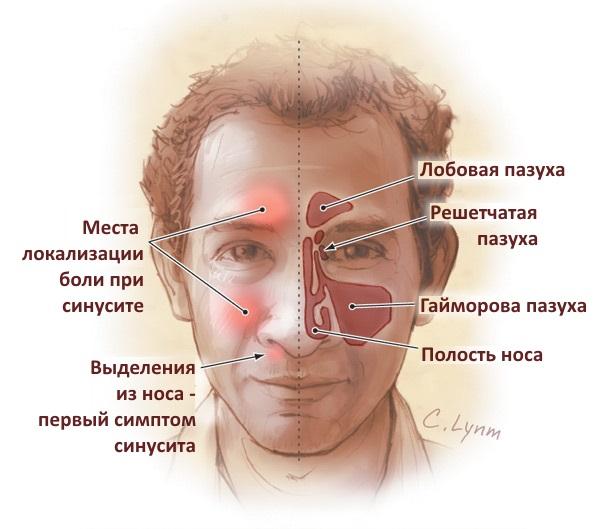 места появления синусита