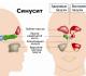 Лечение верхнечелюстного синусита, его причины и разновидности
