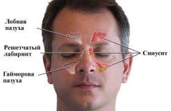 Эффективные препараты для лечения синусита