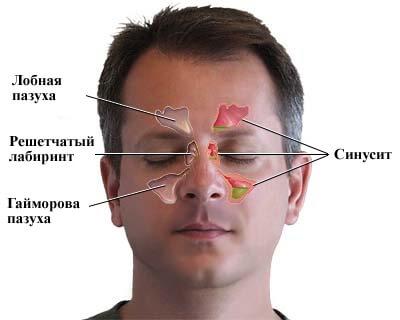 синусит в разрезе