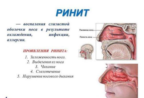Заложенность носа и кашель при беременности
