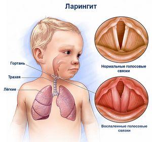 ларингит у ребенка