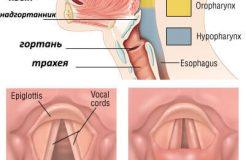 Как лечить ларингит у взрослых людей, его симптомы и типы