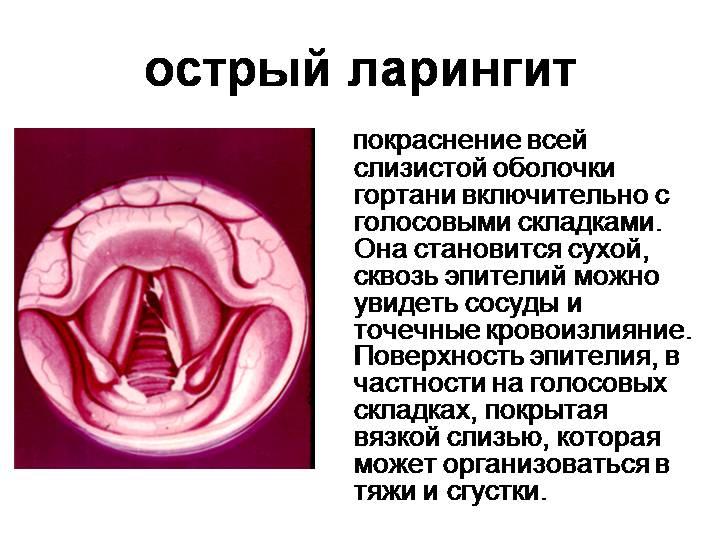 острый ларингит