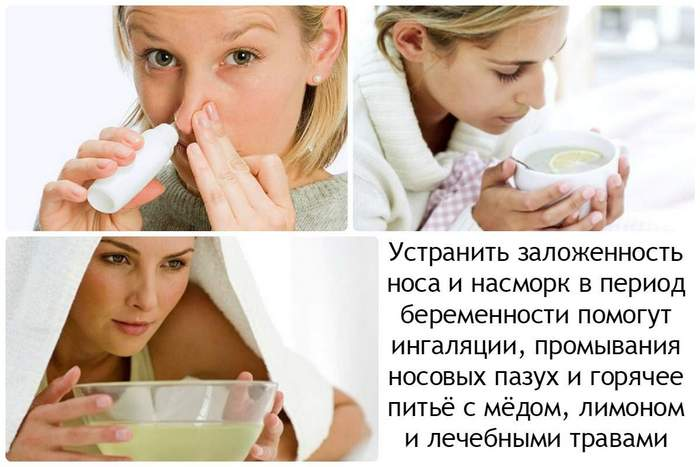 Заложенность носа у беременных на ранних сроках 54