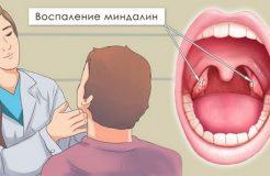 Как избавиться от гнойных пробок в горле, их причины