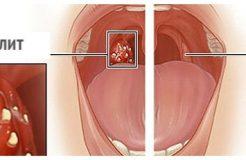 Лечение стрептококковой инфекции в горле, причины ее появления