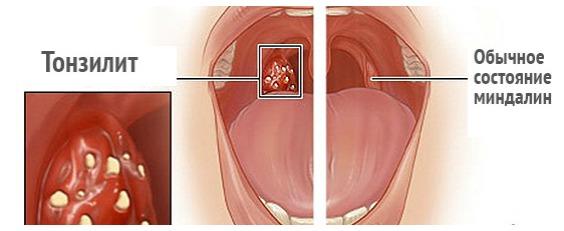 Стрептококк в горле лечение