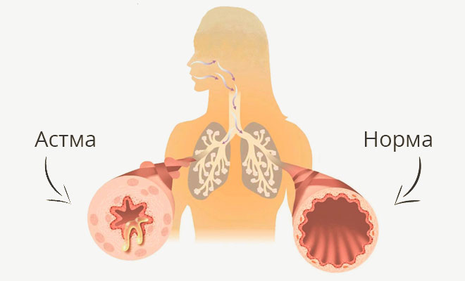 астма и нормальное состояние бронхов