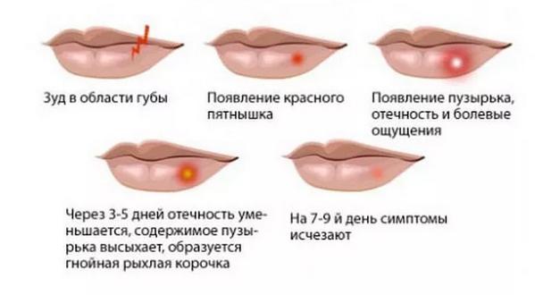 процесс появления герпеса
