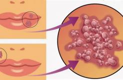 Лечение вируса герпеса 1 типа у взрослых и детей