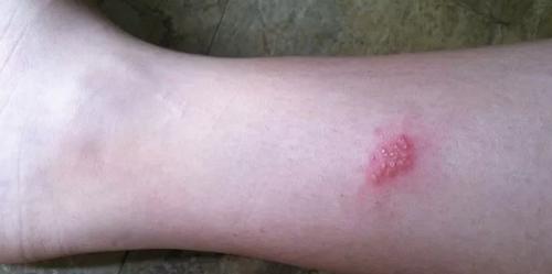 герпеса на ноге