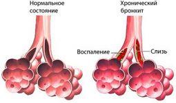 Бронхит: симптомы и лечение, причины заболевания и осложнения